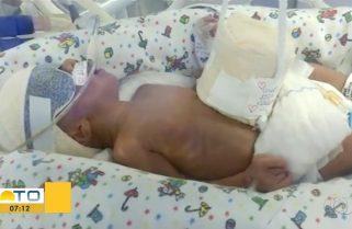 Família luta para que bebê que nasceu com malformação seja transferido e faça cirurgia em Palmas